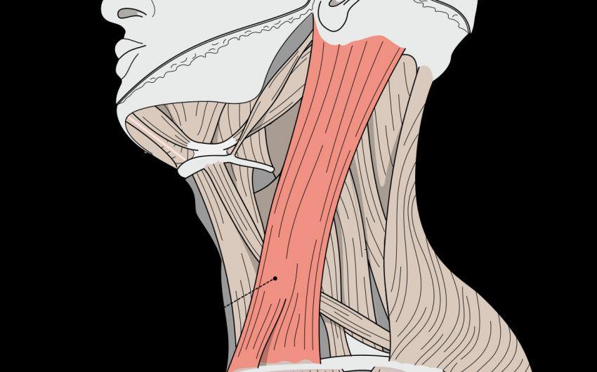 Eine grafische Darstellung des Kopfnickermuskels. Ist der Kopfnickermuskel verkürzt, tritt der sogenannte muskuläre Schiefhals auf.