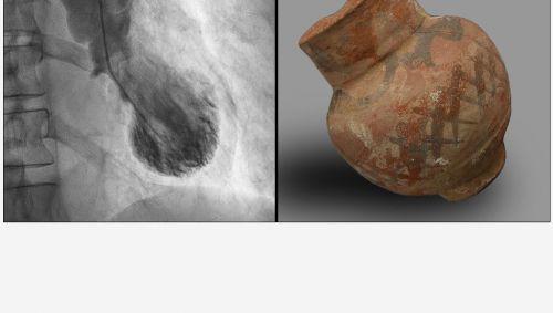 Die linke Herzkammer ist beim Broken-Heart-Syndrom auffällig verformt, ähnlich einer traditionellen japanischen Tintenfischfalle (Tako-Tsubo). (Bildquelle links: Universität Heidelberg; Bildquelle rechts: Wikimedia commons).