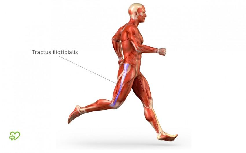 Eine grafische Darstellung des Tractus iliotibialis, eine breite Sehne, die vom Oberschenkel über das Kniegelenk bis zum Schienbein verläuft. Beim Läuferknie ist diese Sehne gereizt.