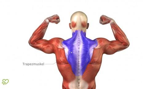 Nackenschmerzen treten im Bereich des oberen Trapezmuskels auf.