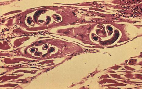 Mikroskopische Aufnahme von Muskelzellen mit eingekapselten Trichinen.