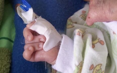 Man sieht ein Neugeborenes mit Trisomie 18, das die Hand typischerweise zur Faust geballt hat und mit dem Zeigefinger den dritten und vierten Finger überlappt.