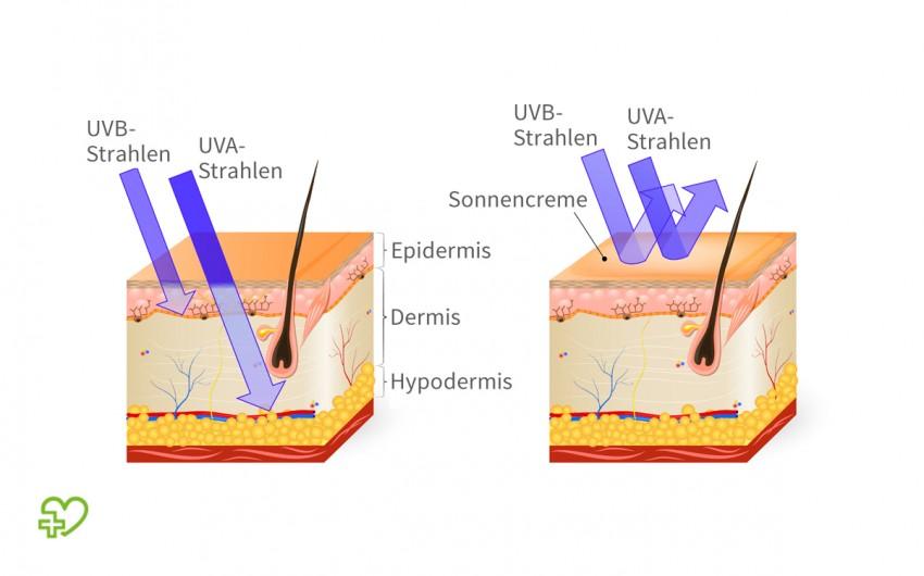 Schematische Darstellung der Eindringtiefe von UV-Strahlung in die Haut.