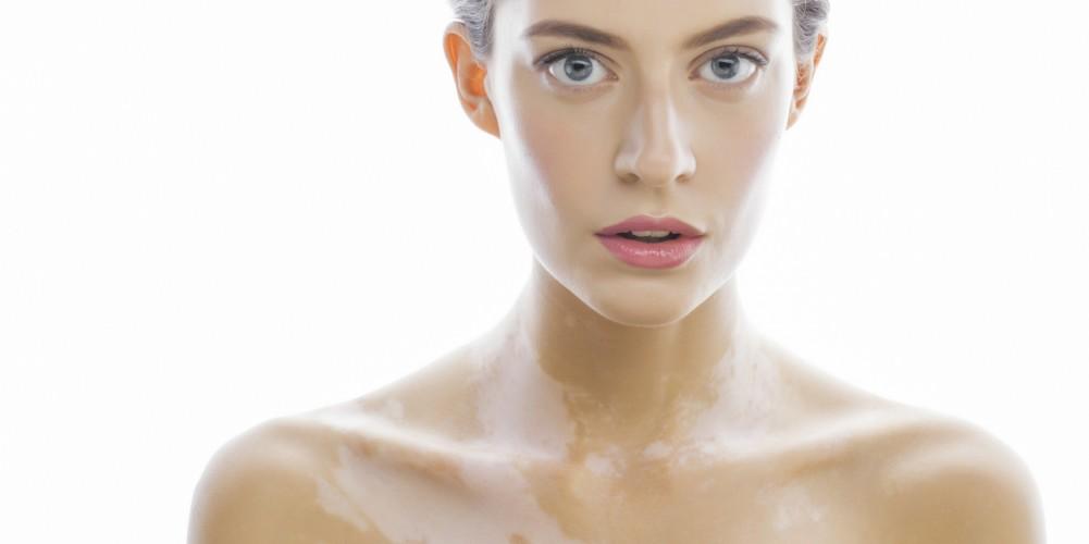 Das Bild zeigt eine junge Frau mit Vitiligo.
