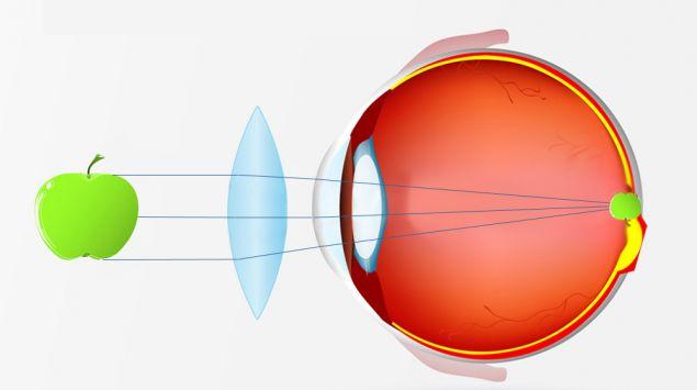 Die visuelle Wahrnehmung bei Weitsichtigkeit mit einer Brille, grafisch dargestellt