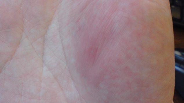 Das Bild zeigt einen Wespenstich an der Hand.
