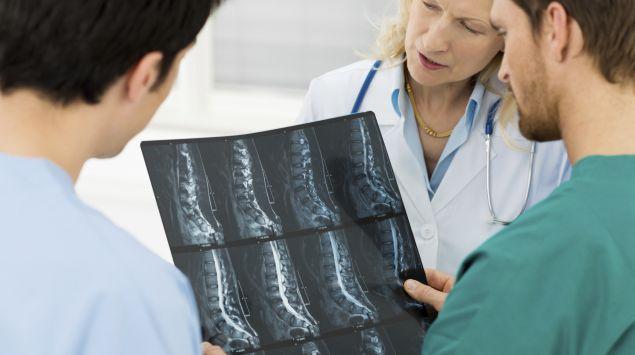 Das Bild zeigt Röntgenaufnahmen einer Wirbelsäule.