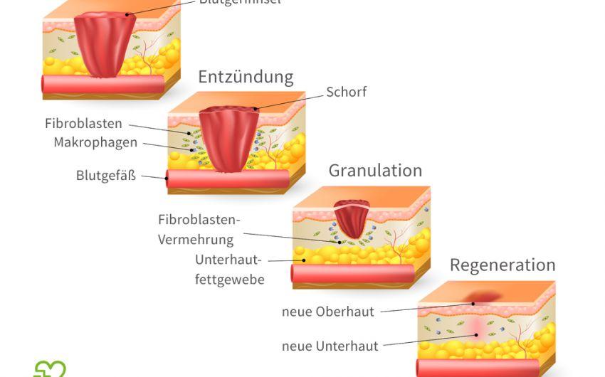 Schematische Darstellung der Wundheilung