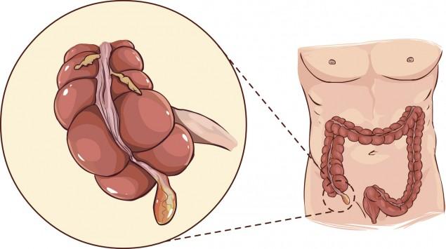 Darstellung eines Darms mit Wurmfortsatz