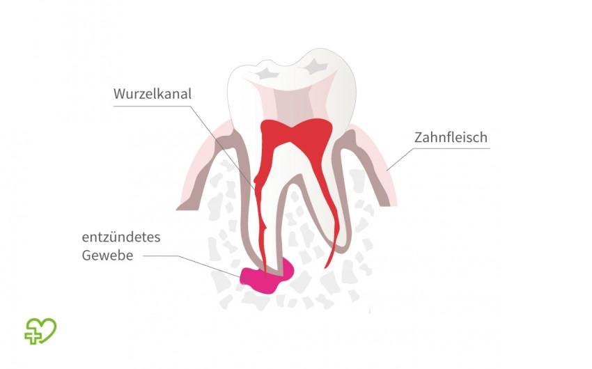 Illustration: Zahn mit entzündetem Gewebe an der Wurzelspitze.