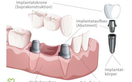 Illustration: Darstellung eines Zahnimplantats
