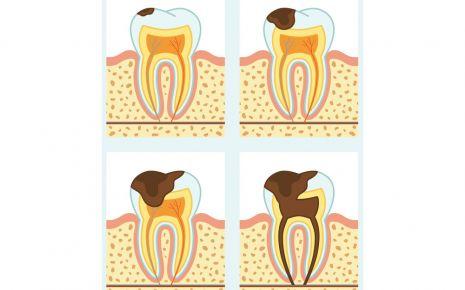 Karies dringt ohne Behandlung immer tiefer in den Zahn ein.