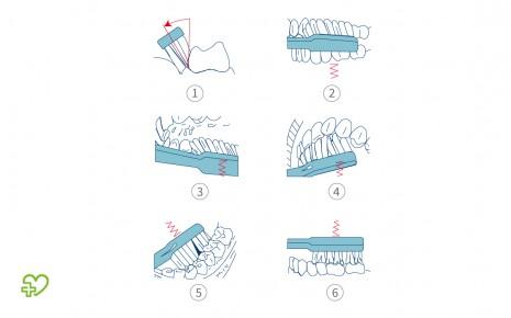 Vibrationstechnik beim Zähneputzen