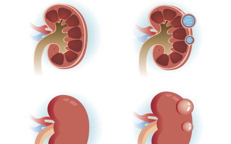 Nierenerkrankung: Zystennieren